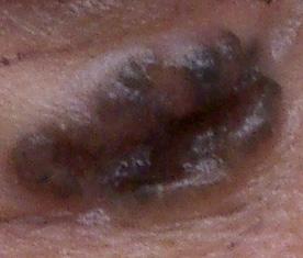 皮膚腫瘍1