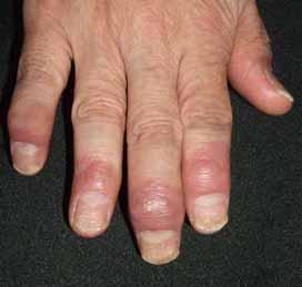 関節症性乾癬