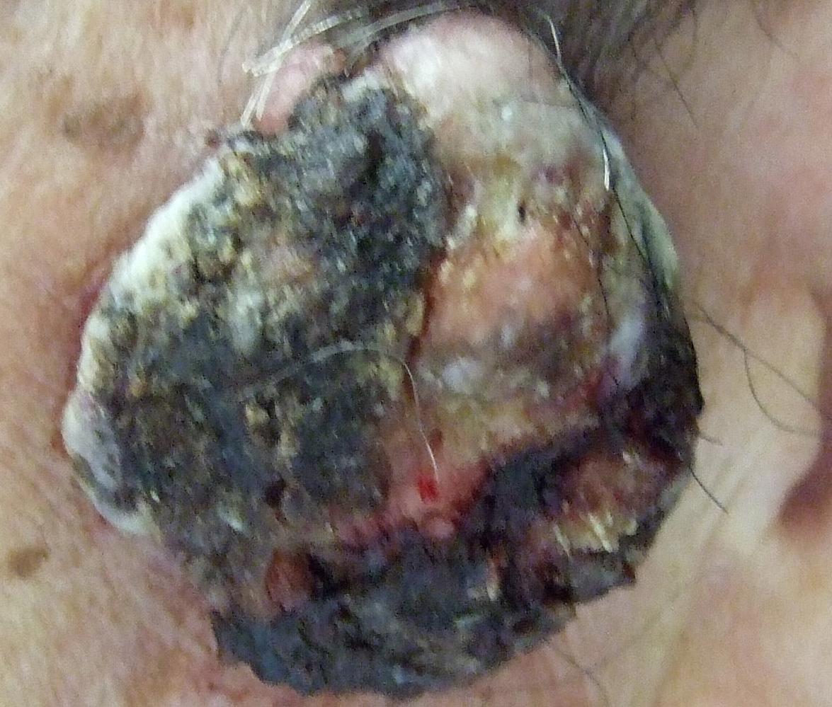 皮膚腫瘍6