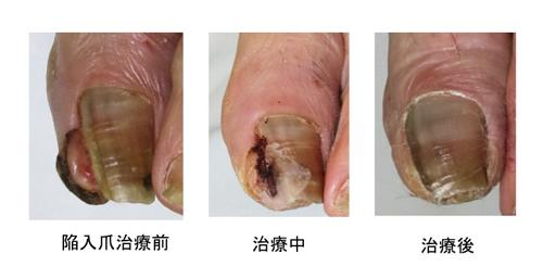 陥入爪治療前・治療中・治療後